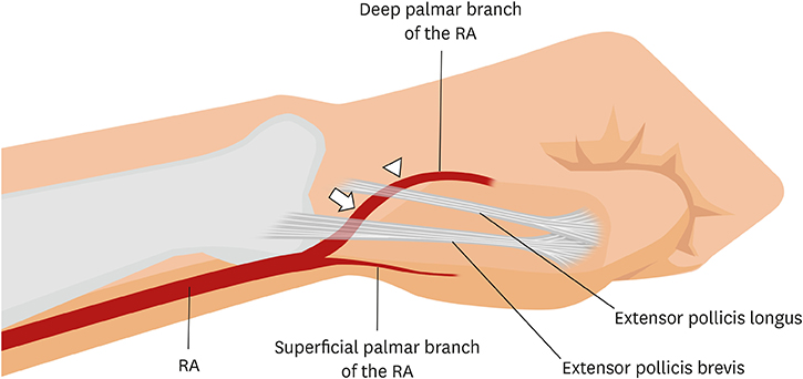 Distal Radial Approach Through The Anatomical Snuff Box For Coronary Angiography And Percutaneous Coronary Intervention (6,36,37) they most often occur at the level of the anatomical snuff box, with the artery passing superficial to the tendons that form the borders of. distal radial approach through the